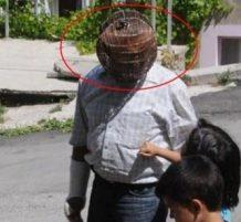 يرتدي قفص في رأسه ليقلع عن التدخين