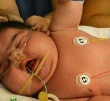 أضخم مولود في ألمانيا