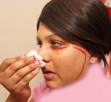 فتاة تبكي وتتعرق دماً