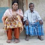 إنقاذ أطول امرأة في العالم