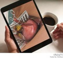 تطبيق العمليات الجراحية