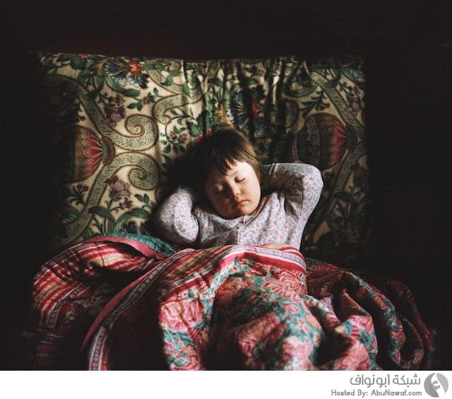 الحياة اليومية لطفلة تعاني من متلازمة داون