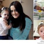طفلة تعاني من حالة نادرة