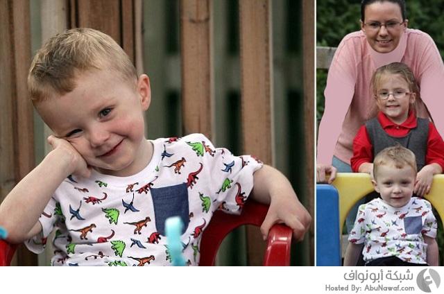 طفل يعاني من حساسية تجاه الطعام