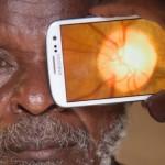 peek علاج عين تطبيق تقنية