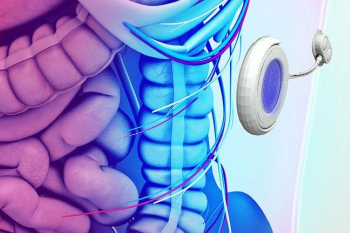 البنكرياس الاصطناعي