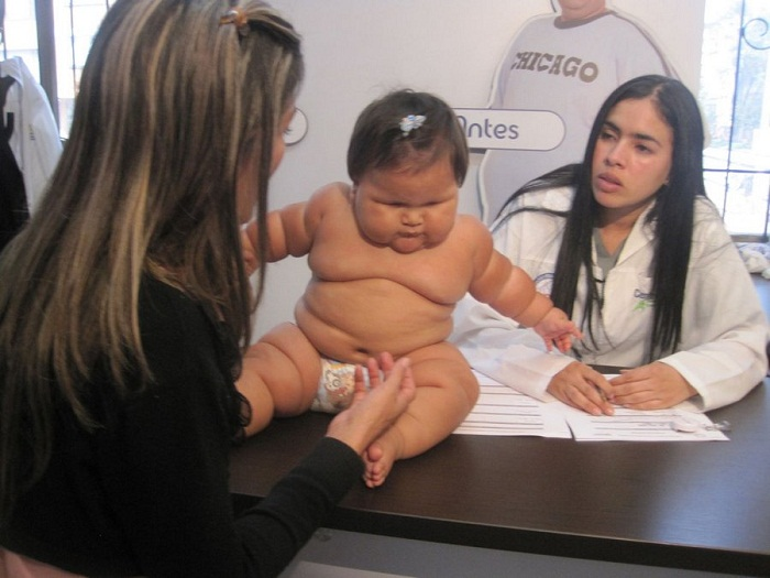 طفلة سمينة
