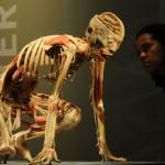 Human Cadavers