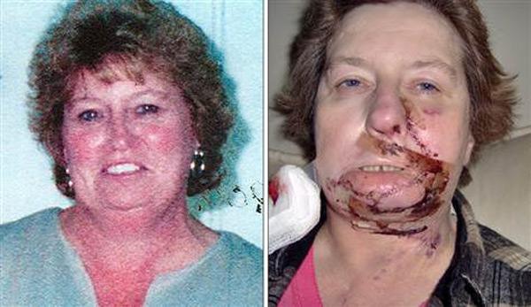 أخطاء العمليات الجراحية