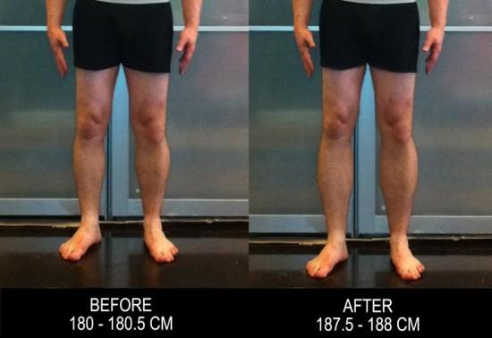 leg-lenthening-surgery3-550x378