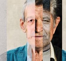 اختلاف لون البشرة