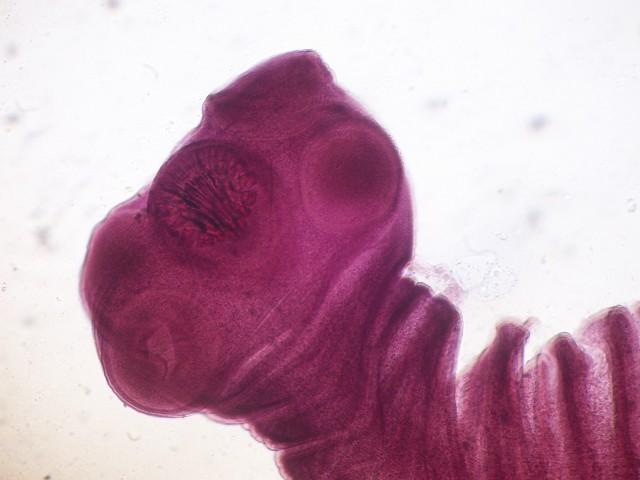 أمراض شنيعة مرض الكيسات المذنبة