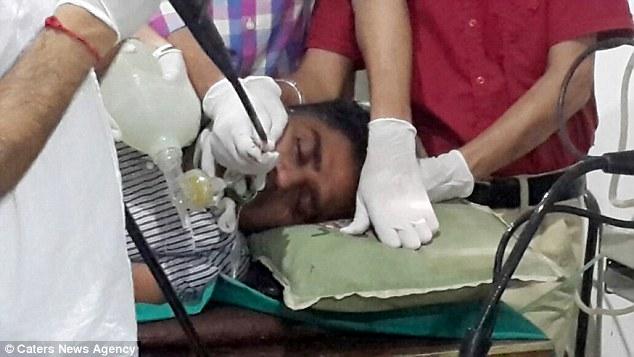 هندي ببتلع مئات النقود والمسامير بعد اصابته بالاكتئاب