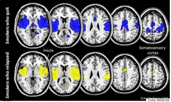 قشردة دماغ المدخن
