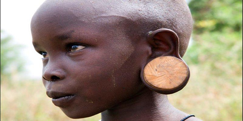 شحمة الأذن المتمددة