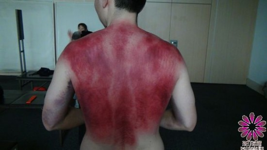 العلاج بالضرب أسلوب رجل صيني في علاج مرضاه