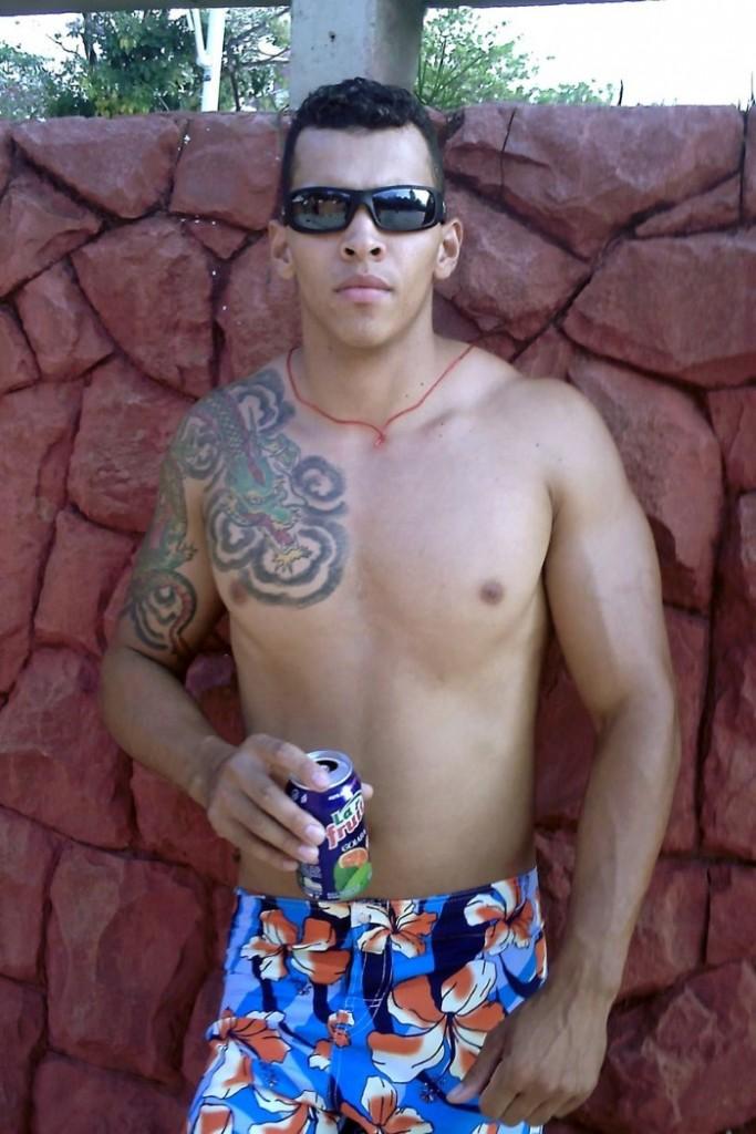 لاعب كمال أجسام يواجه خطر بتر ذراعيه بسبب حقنهما بالزيت