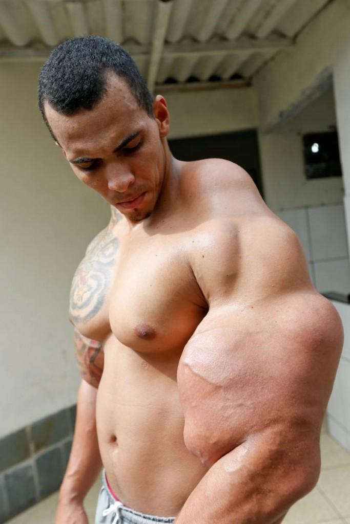 لاعب كمال أجسام بعضلات ضخمة وغير طبيعية