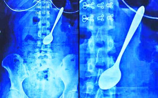 أشعة لجوف شابة صينية بعدما ابتلعت ملعقة