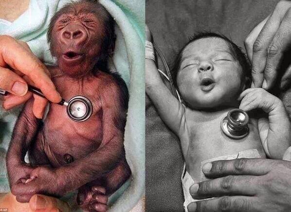 ردة فعل ظريفة لصغير القرد عند وضع سماعات الطبيب الباردة على صدره