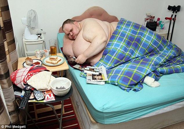 وفاة أسمن رجل في بريطانيا كان يتناول 10,000 سعرة حرارية يومياً