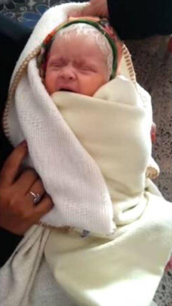 إمرأة يمنية تلد طفلة بشعرٍ أبيض
