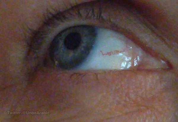 """امرأة تكونت لديها الأوعية الدموية في عينها على شكل كلمة """"Love"""""""