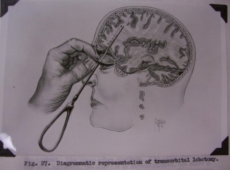 جراحة فصوص المخ