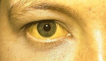 اصفرار بياض العين صحتك في عيونك