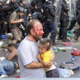 لاجئ مصاب بجروح
