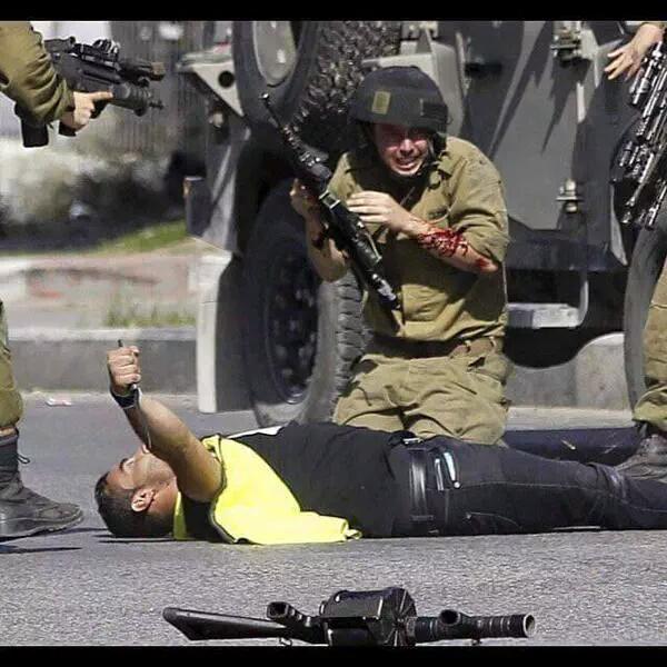 جندي صهيوني مصاب