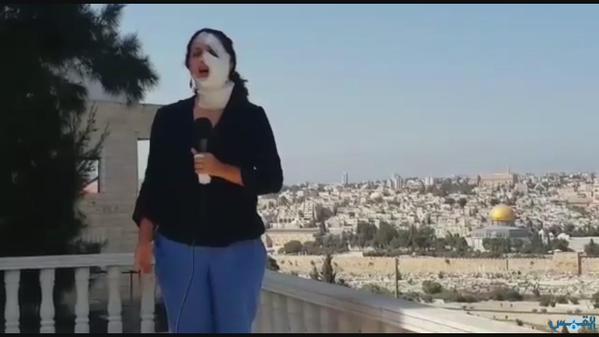 مراسلة فلسطينية مصابة