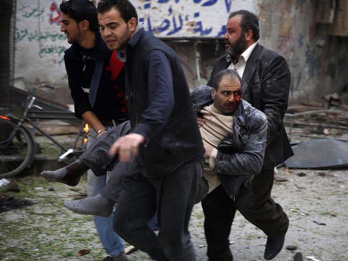 مصاب سوري