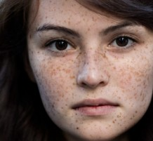 People Have Freckles