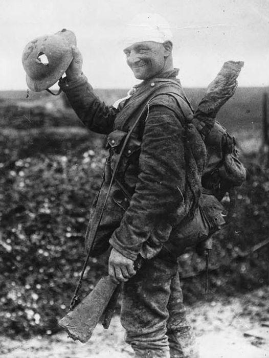 جندي بريطاني مصاب