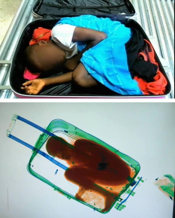 طفل في حقيبة