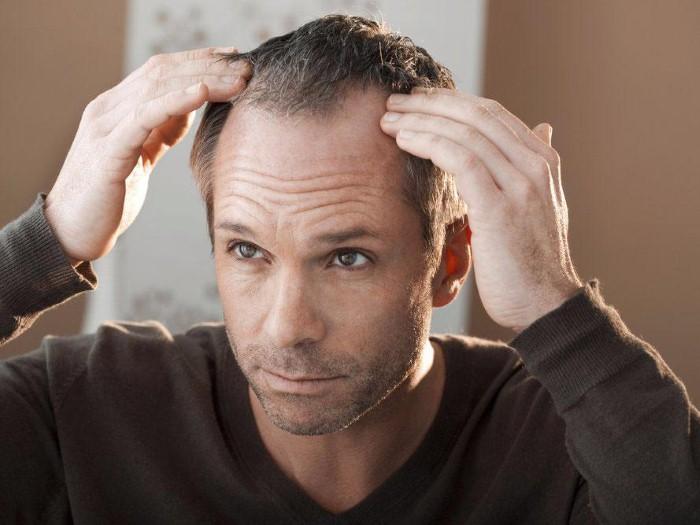 فقدان الشعر