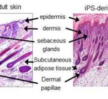 الجلد