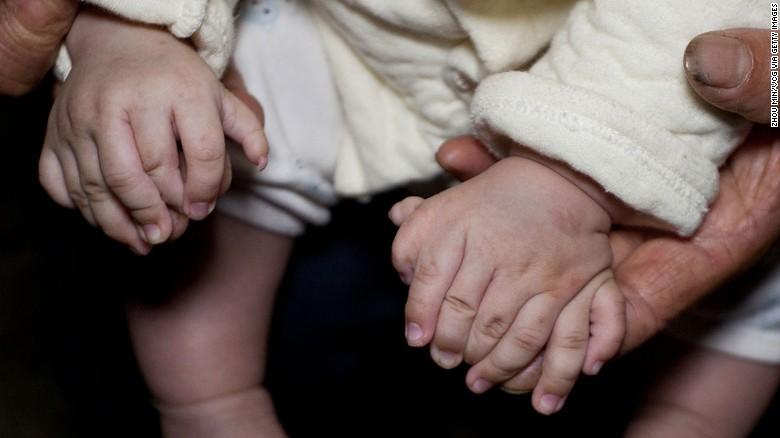 طفل صيني بـ 31 إصبع