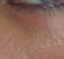 النقاط البيضاء تحت العين