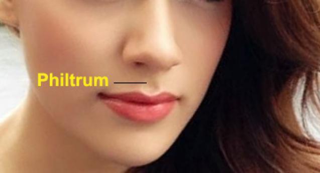 philtrum الشكل الأخدودي