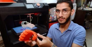3D printer to make limbs