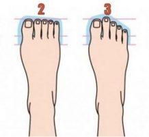 Feet Shape