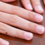 Fingernails to Turn White