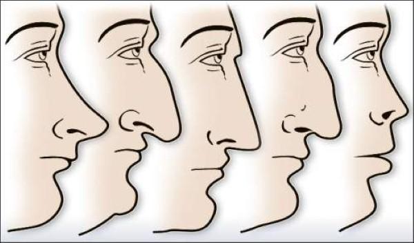 شكل أنف