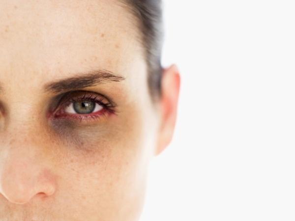 ماذا يقول وجهك عن صحتك