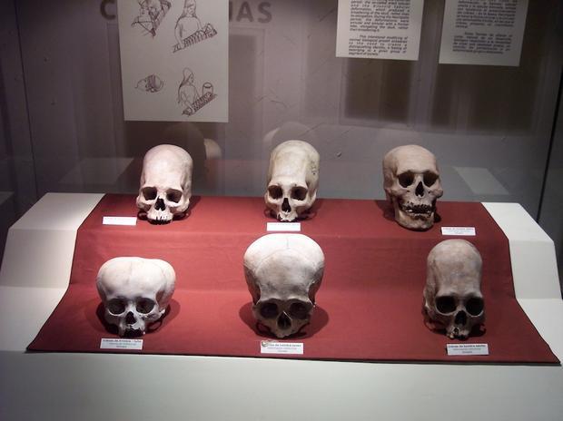 ناس غيروا أشكال جماجمهم لأسباب غريبة على مدار العصور  ناس غيروا أشكال جماجمهم لأسباب غريبة على مدار العصور