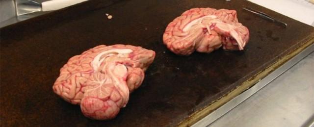 بنك الدماغ