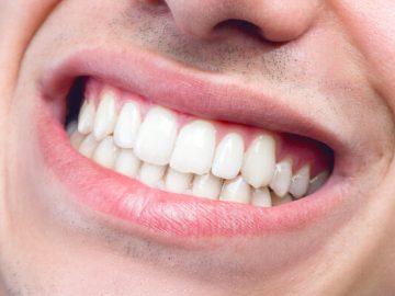 لا تنمو الأسنان