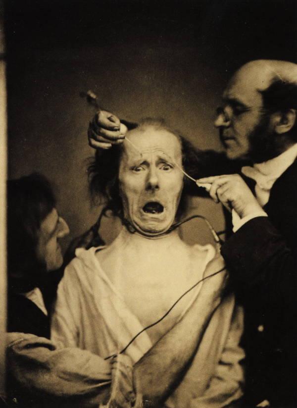 طبيب الأعصاب الفرنسي